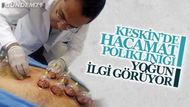 Keskin Devlet Hastanesi Hacamat Polikliniği Yoğun İlgi Görüyor